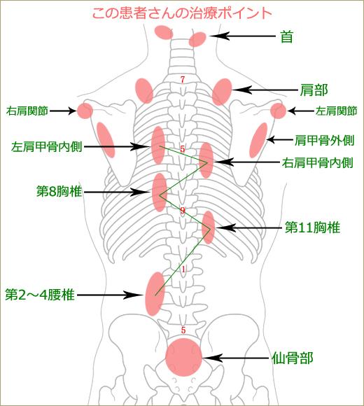 首・肩・背中の痛みの治療ポイント