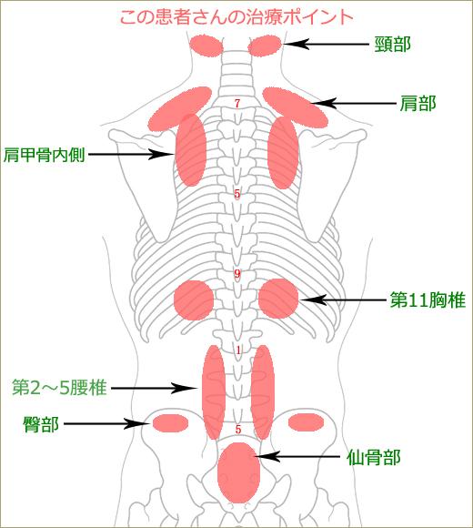 腰椎椎間板ヘルニアの治療ポイント