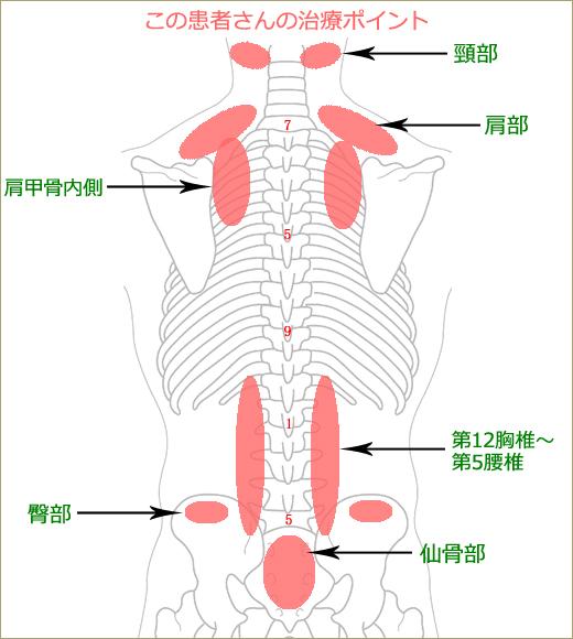 腰痛の治療ポイント