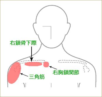 五十肩の治療ポイント④